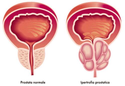 curare la prostata con la maca rossa
