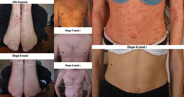 Dermatite di atopic ai sintomi di bambino
