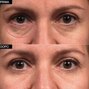 efficacia eye pad