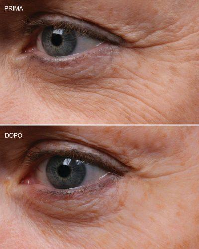 facial pad multy area, prima e dopo