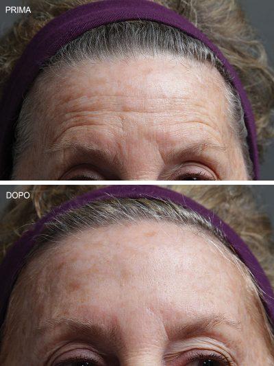 trattamento rughe facial pad